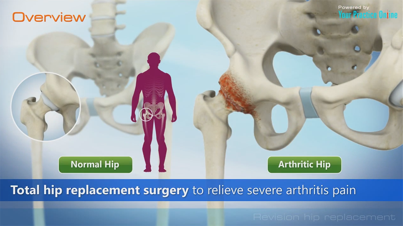 Revision Hip Replacement Video | Hip Orthopaedics Videos | YPO ...