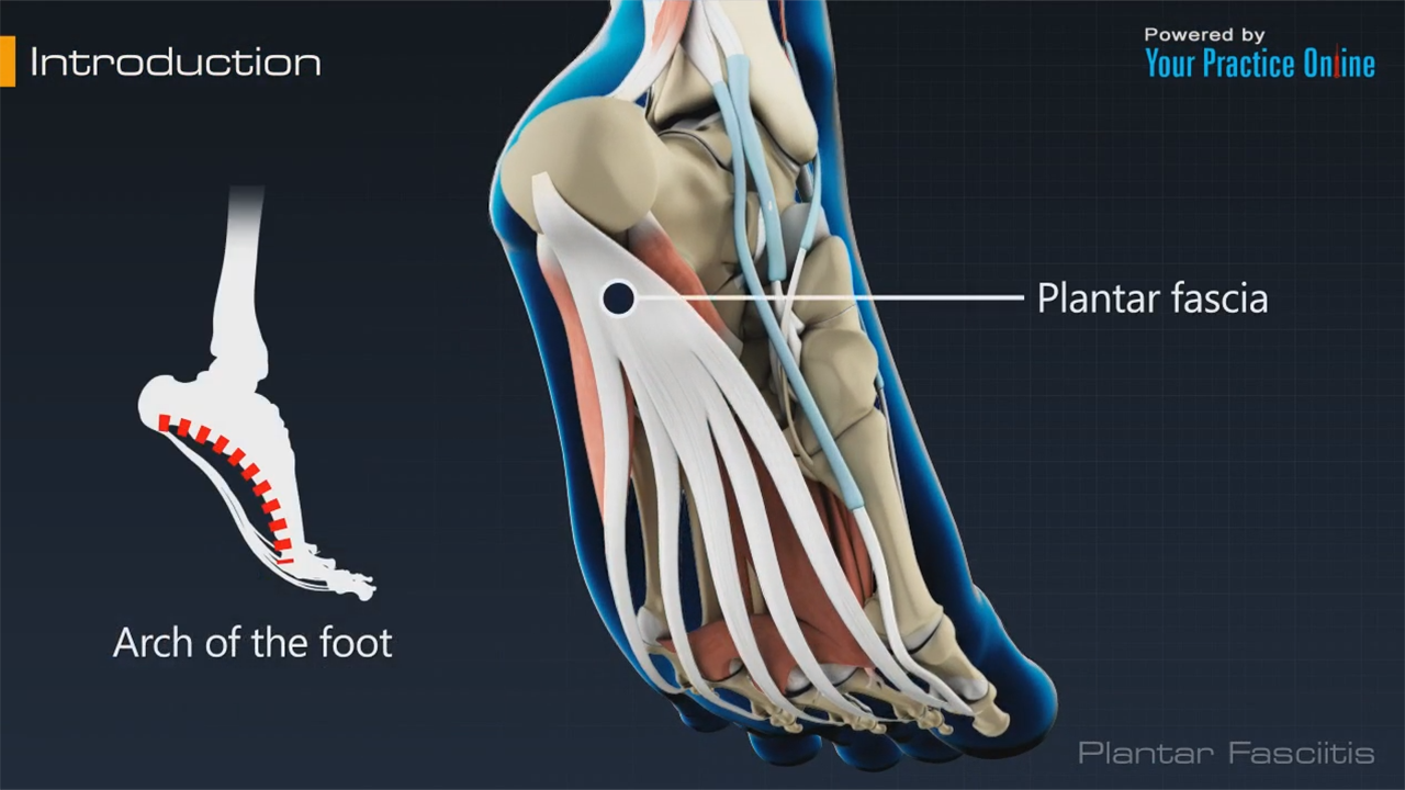 Video on Plantar Fasciitis | YPO Education