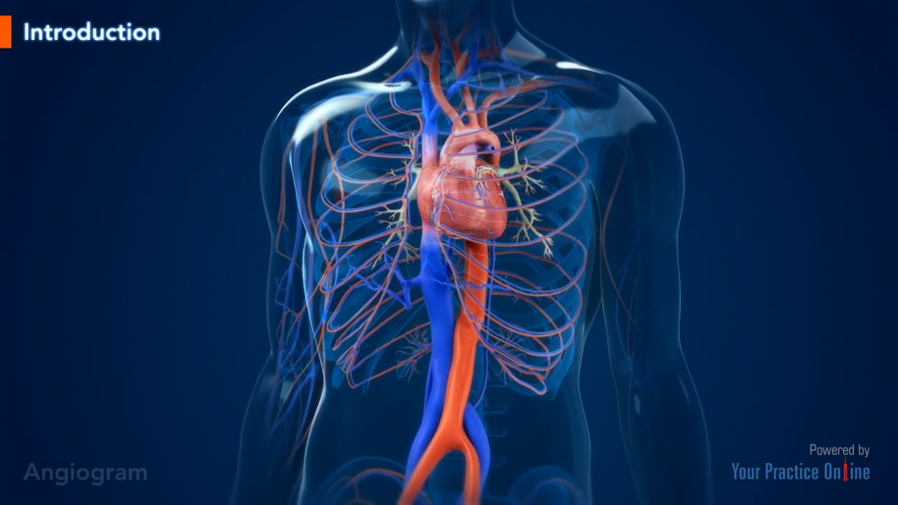 Angiogram Cardiacheart Videos Your Practice Online Education