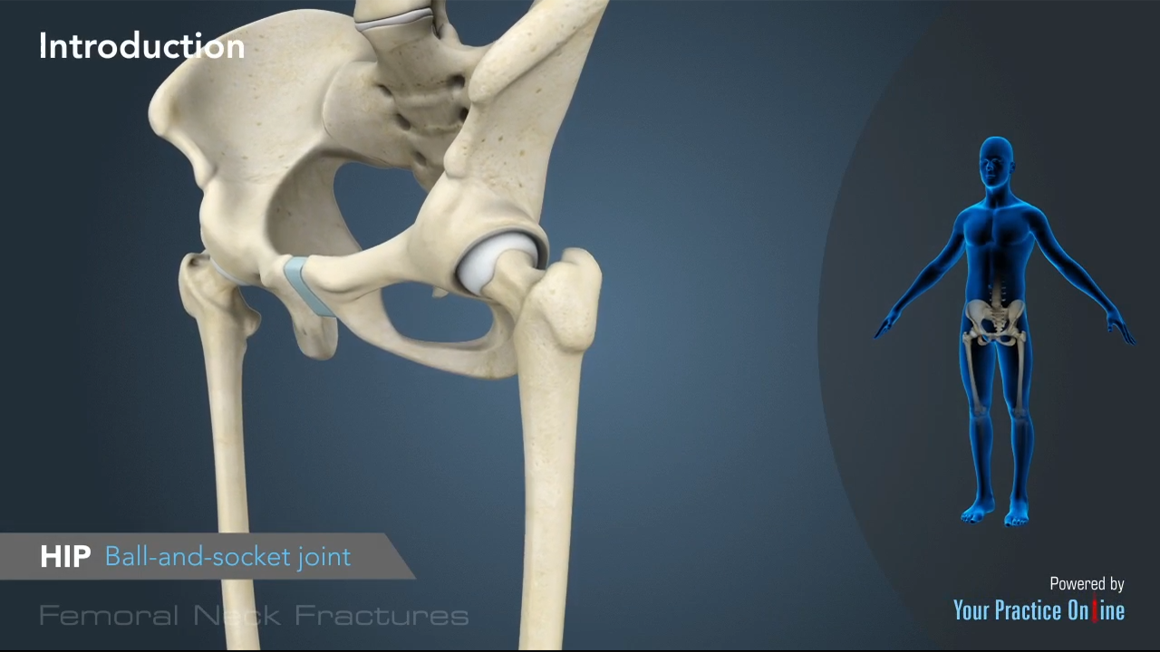 Femoral Neck Fracture Video | Hip Surgery Videos | Your