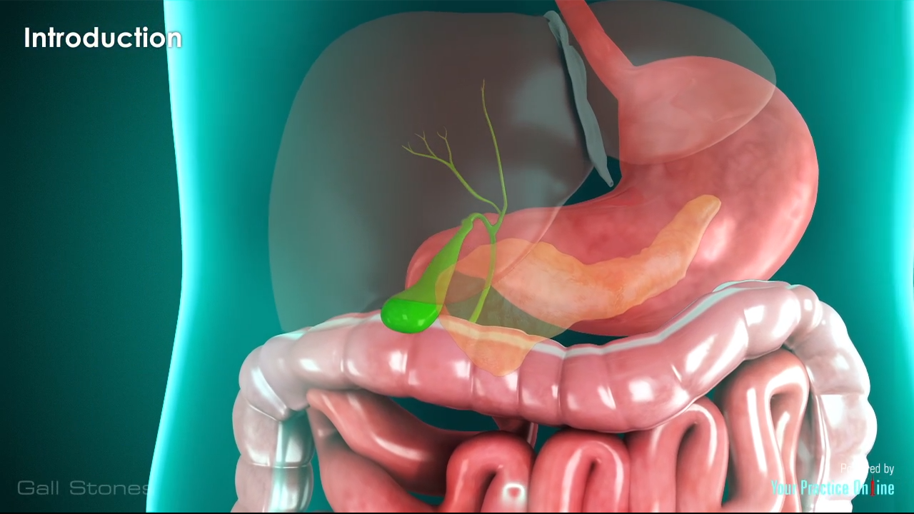 Gallstone Surgery Video | Lap Cholecystectomy Surgery Video ...