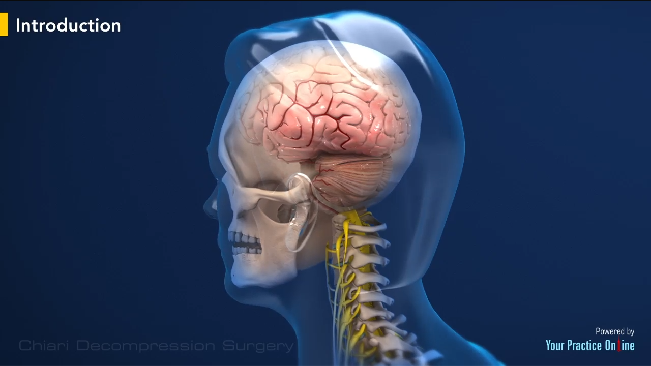 Chiari Decompression Surgery