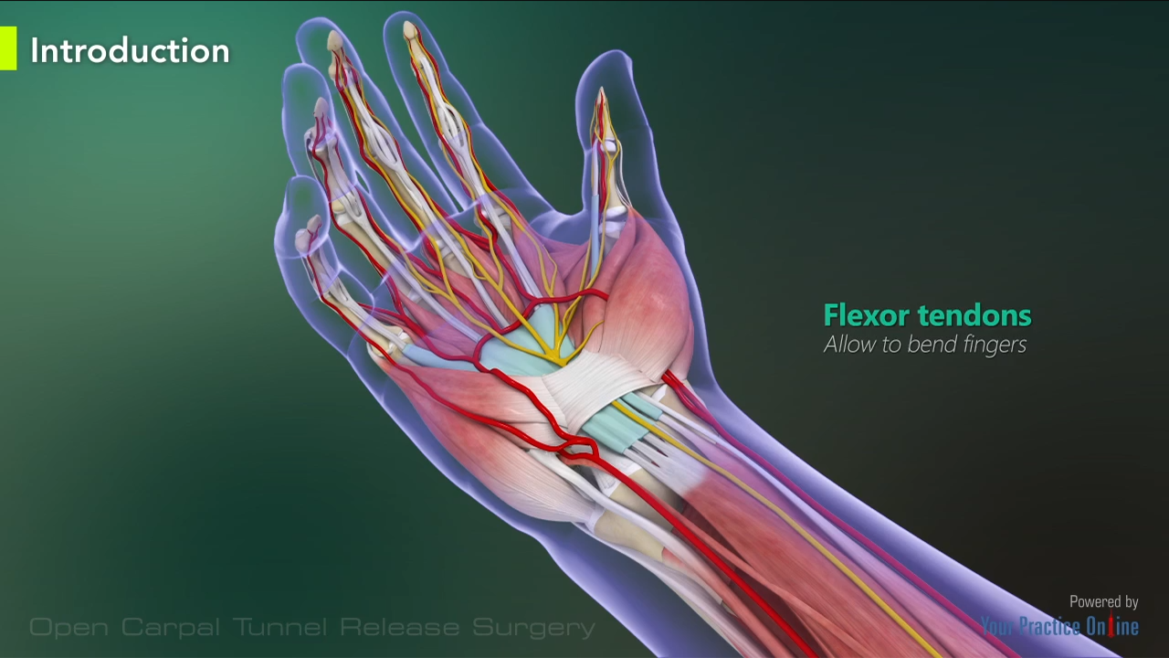 Open Carpal Tunnel Release Surgery Hand Wrist Orthopaedics