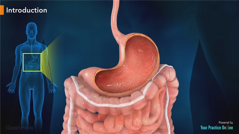 gastritis in remission cancer cells.jpg
