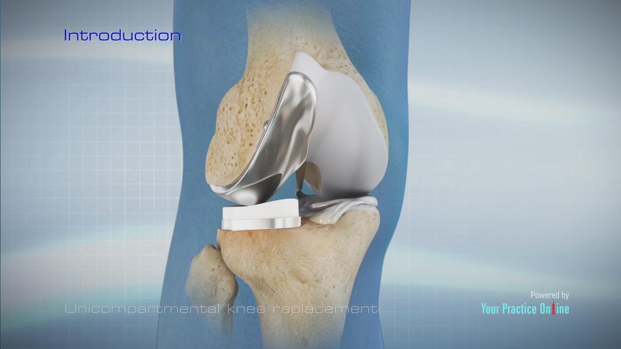 Uni Knee Replacement