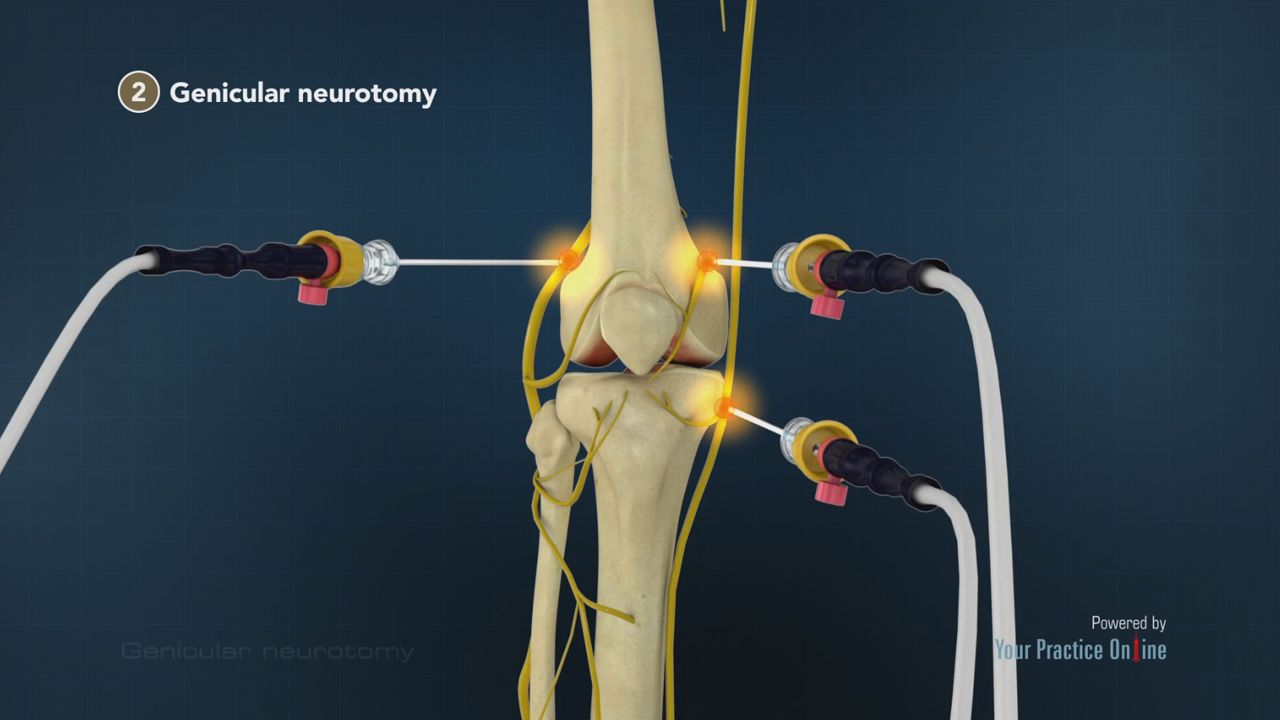 Genicular Neurotomy Knee Orthopaedics Videos Your