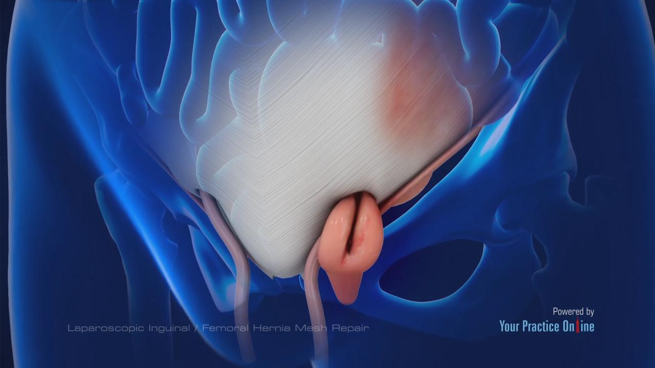 Laparoscopic Inguinal or Femoral Hernia Mesh Repair | General Videos ...