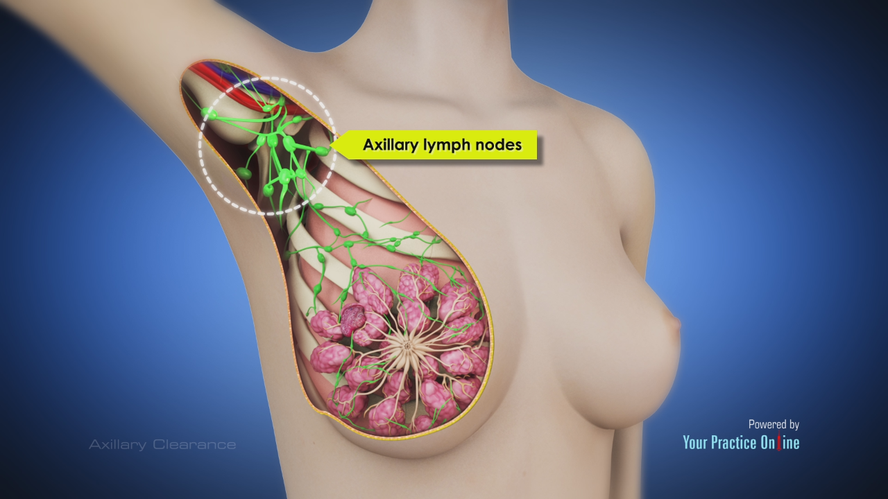 Axillary Clearance General Videos Your Practice Online Education