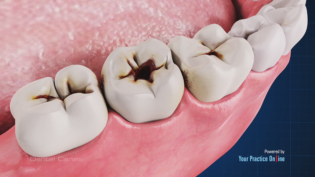 dental caries dental videos your practice online education