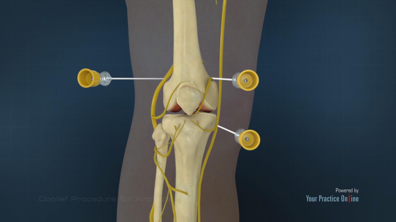 Coolief Procedure For Arthritis Pain Knee Orthopaedics