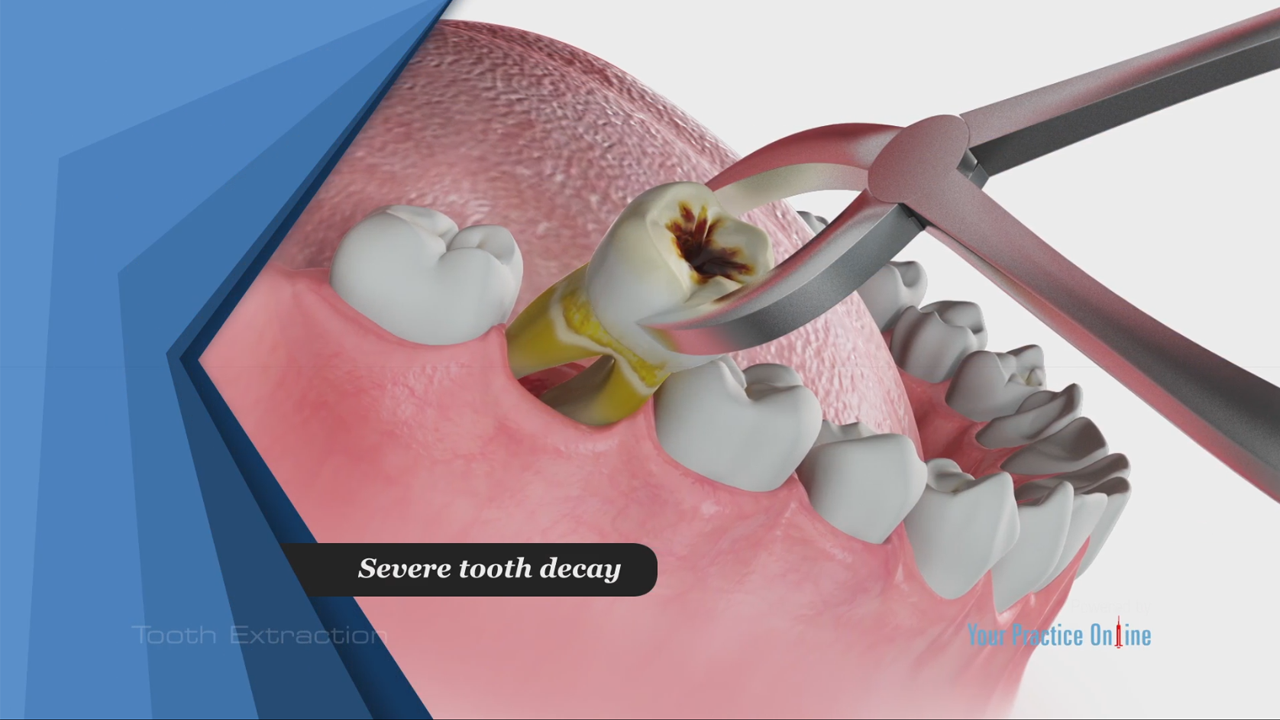 Tooth Extraction Video Medical Video Library