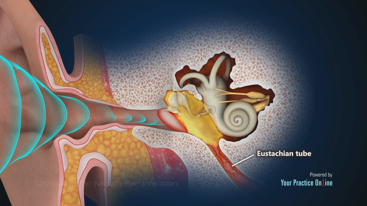 Otitis Media: Middle Ear Infection | Ear ENT Videos | Your Practice ...