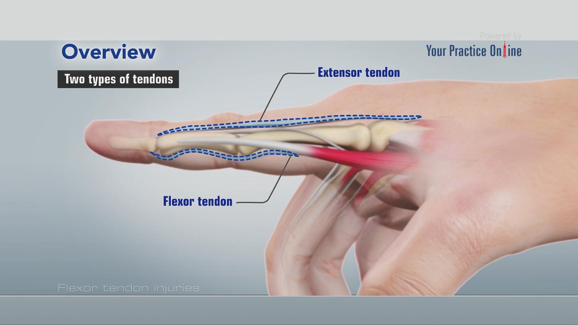 flexor tendon injuries | hand & wrist orthopaedics videos | your practice  online education