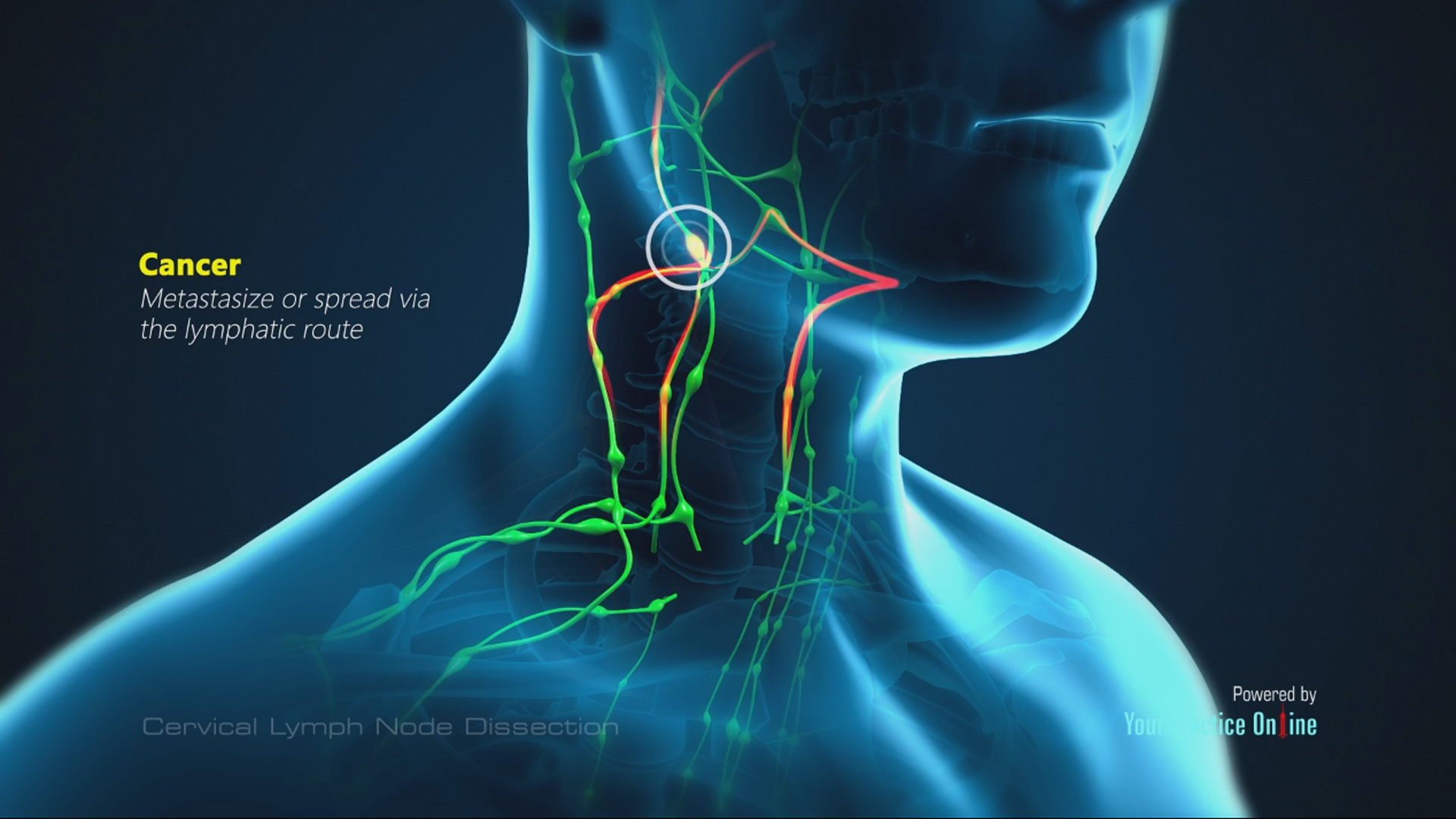 metastatic cancer lymph node neck