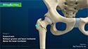 Subtrochanteric Hip fracture
