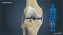 Multiligament Knee Reconstruction