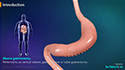 Sleeve Gastrectomy-Single Stage Procedure