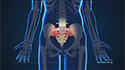 X-ray Guided Sacroiliac Joint Injections