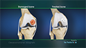 Osteochondral Allograft