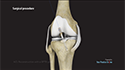 ACL Reconstruction with a Bone-Patellar Tendon-Bone (BPTB) Graft