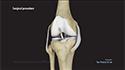 ACL Reconstruction with a Bone-Patellar Tendon-Bone (BPTB) Graft
