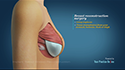 Implant Based Breast Reconstruction
