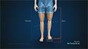 Pediatric Limb Lengthening
