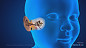 Hearing Disorders in children