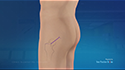 Direct Superior Hip Approach