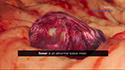 Musculoskeletal Tumors
