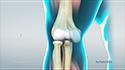 Elbow Sprain