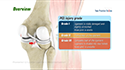 Posterior Cruciate Ligament Reconstruction