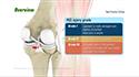 Posterior Cruciate Ligament Reconstruction