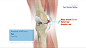 Medial Collateral Ligament Reconstruction