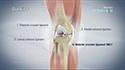 ACL Reconstruction Patellar Tendon