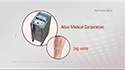 Altus Coolglide Laser Therapy for Leg Veins