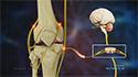 Genicular Nerve Block