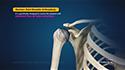 Stemless Total Shoulder Arthroplasty