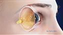 Intraocular Lenses (IOL)