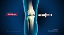 Intra-articular Knee Injections