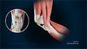 Quadriceps Tendon Rupture and Repair