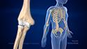 Pediatric Supracondylar Fractures
