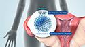 Blastocyst Embryo Biopsy