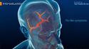 Polymyalgia Rheumatica and Giant cell arteritis